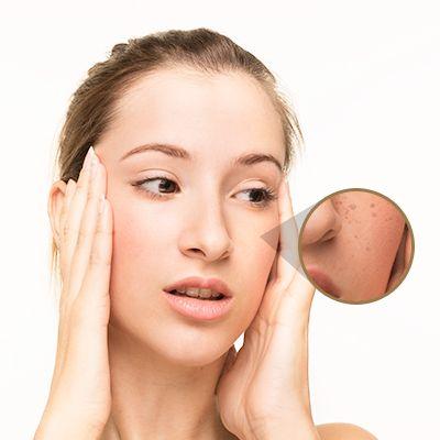¿Porqué aparecen más manchas en la piel?